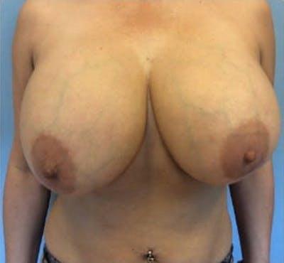 Breast Implant Revision Gallery - Patient 13947236 - Image 1