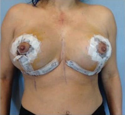 Breast Implant Revision Gallery - Patient 13947236 - Image 2