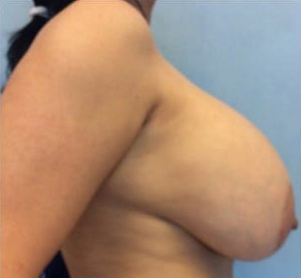 Breast Implant Revision Gallery - Patient 13947236 - Image 3