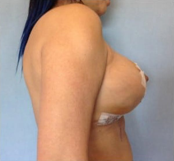 Breast Implant Revision Gallery - Patient 13947236 - Image 4
