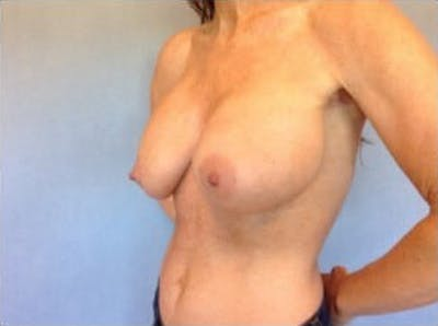 Breast Implant Revision Gallery - Patient 13947237 - Image 1