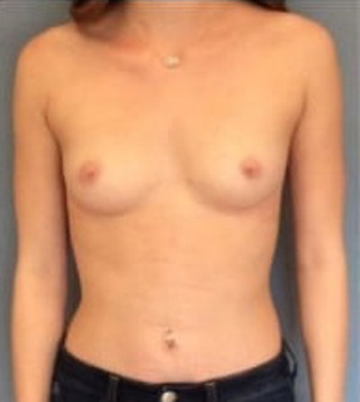 Breast Augmentation Gallery - Patient 13947005 - Image 1