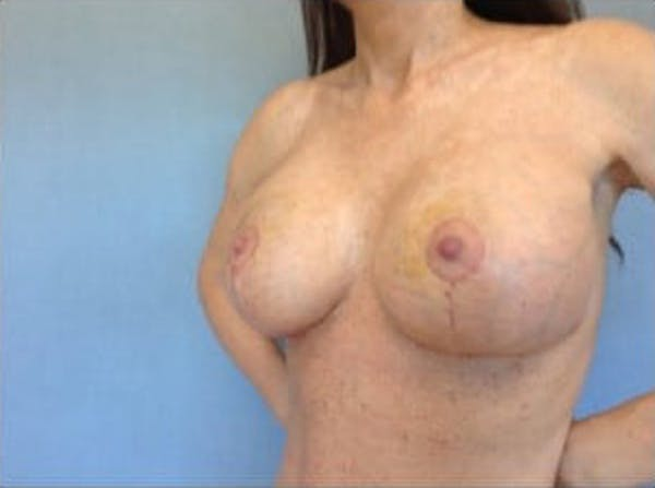 Breast Implant Revision Gallery - Patient 13947237 - Image 2