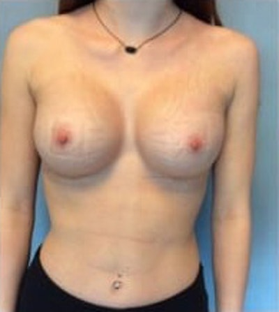 Breast Augmentation Gallery - Patient 13947005 - Image 2