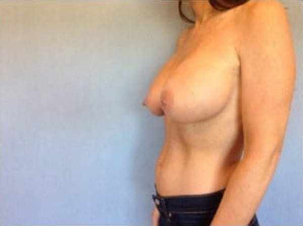 Breast Implant Revision Gallery - Patient 13947237 - Image 3