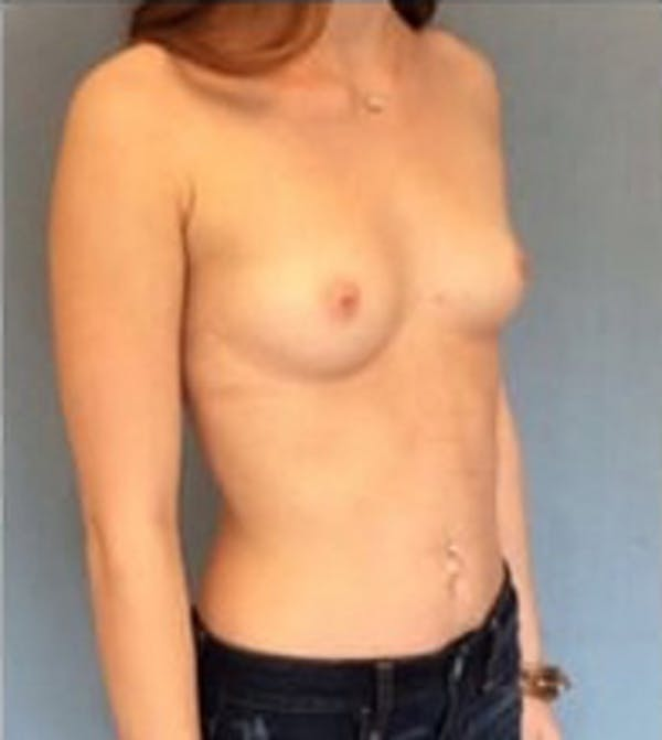 Breast Augmentation Gallery - Patient 13947005 - Image 3