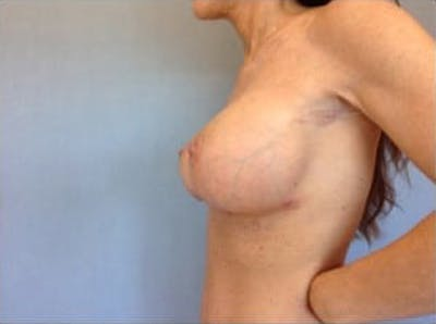 Breast Implant Revision Gallery - Patient 13947237 - Image 4