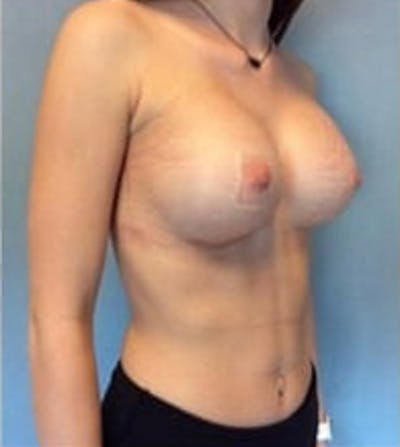 Breast Augmentation Gallery - Patient 13947005 - Image 4