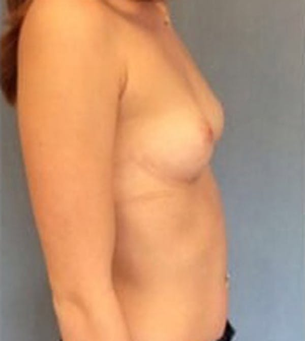 Breast Augmentation Gallery - Patient 13947005 - Image 5
