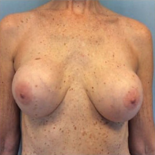 Breast Implant Revision Gallery - Patient 13947238 - Image 1