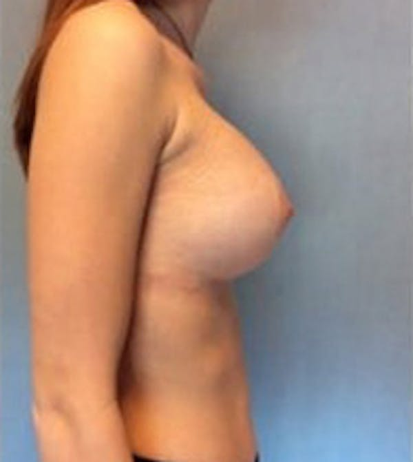 Breast Augmentation Gallery - Patient 13947005 - Image 6