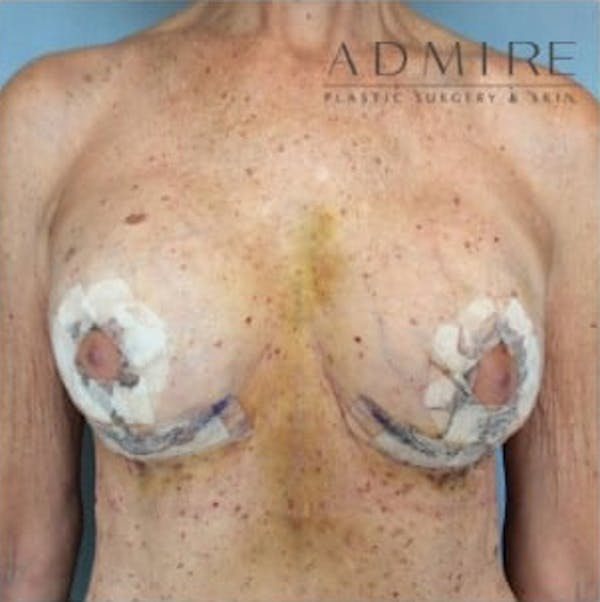 Breast Implant Revision Gallery - Patient 13947238 - Image 2
