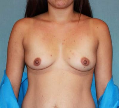 Breast Augmentation Gallery - Patient 13947006 - Image 1