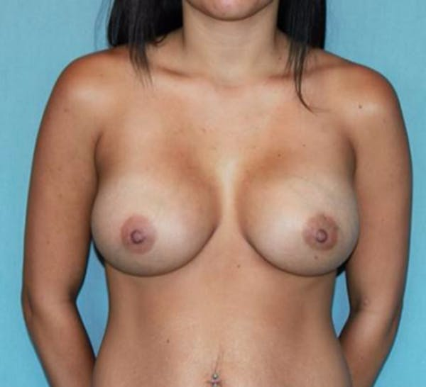 Breast Augmentation Gallery - Patient 13947006 - Image 2