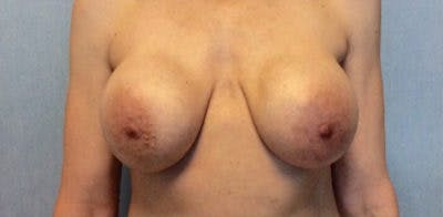 Breast Implant Revision Gallery - Patient 13947239 - Image 1