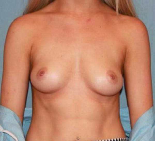 Breast Augmentation Gallery - Patient 13947007 - Image 1