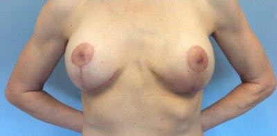 Breast Implant Revision Gallery - Patient 13947239 - Image 2