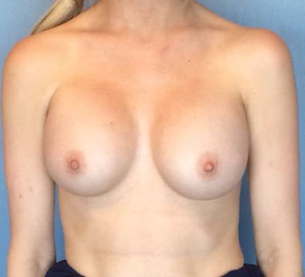 Breast Augmentation Gallery - Patient 13947007 - Image 2