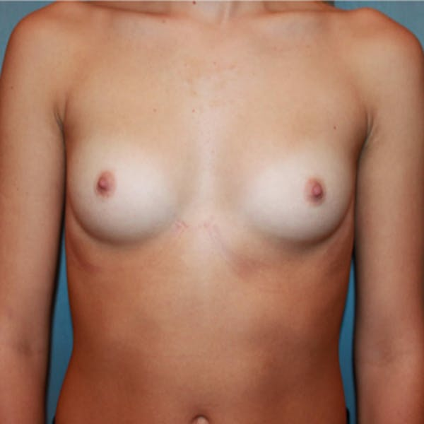 Breast Augmentation Gallery - Patient 13947008 - Image 1