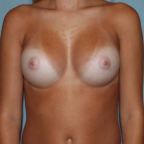 Breast Augmentation Gallery - Patient 13947008 - Image 2