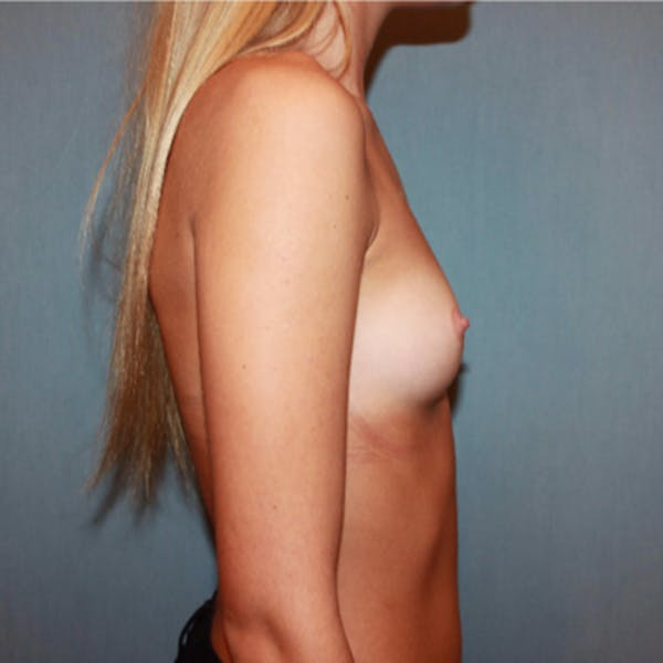 Breast Augmentation Gallery - Patient 13947008 - Image 3