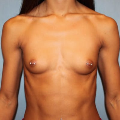 Breast Augmentation Gallery - Patient 13947009 - Image 1
