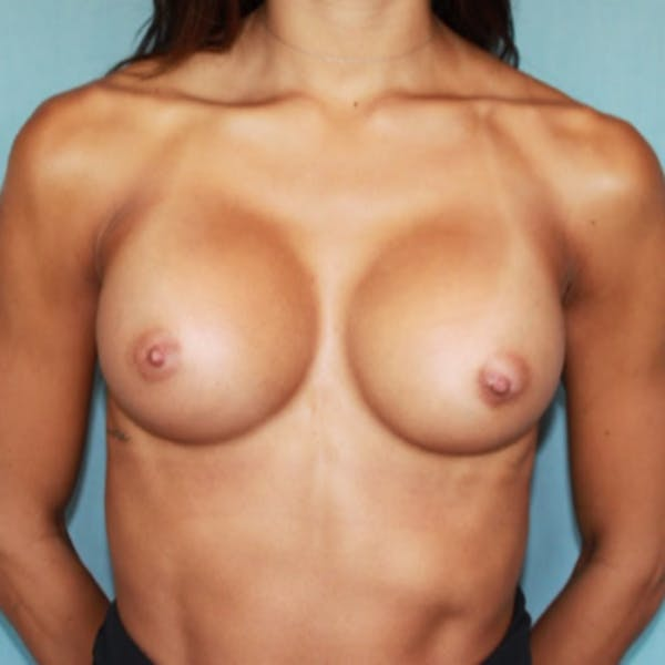 Breast Augmentation Gallery - Patient 13947009 - Image 2