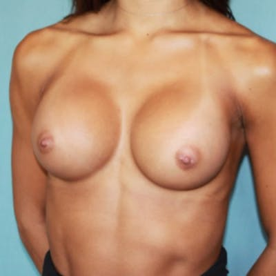 Breast Augmentation Gallery - Patient 13947009 - Image 4