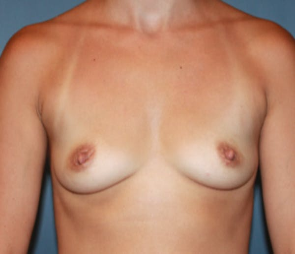 Breast Augmentation Gallery - Patient 13947010 - Image 1