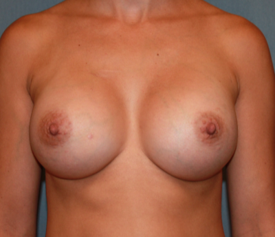 Breast Augmentation Gallery - Patient 13947010 - Image 2