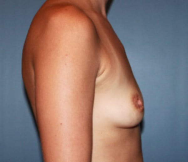 Breast Augmentation Gallery - Patient 13947010 - Image 3