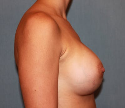 Breast Augmentation Gallery - Patient 13947010 - Image 4