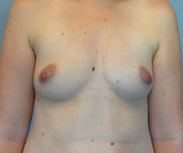 Breast Augmentation Gallery - Patient 13947011 - Image 1