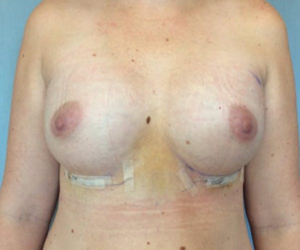 Breast Augmentation Gallery - Patient 13947011 - Image 2