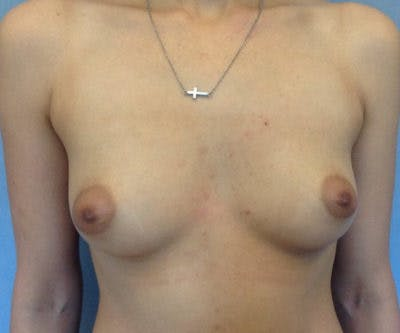 Breast Augmentation Gallery - Patient 13947012 - Image 1