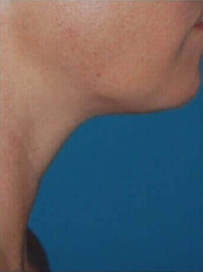 Liposuction Gallery - Patient 13947245 - Image 2