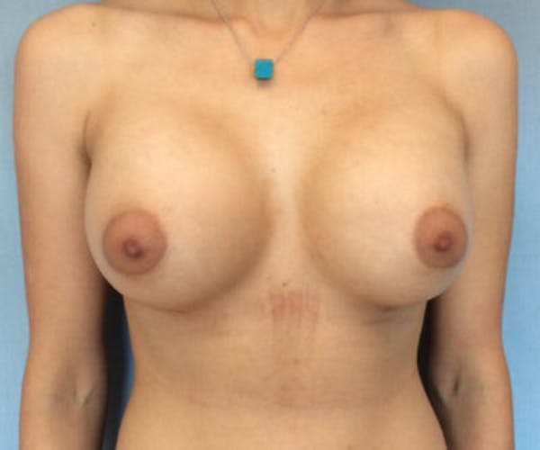 Breast Augmentation Gallery - Patient 13947012 - Image 2