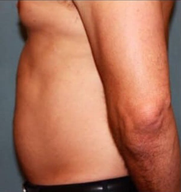 Liposuction Gallery - Patient 13947246 - Image 1