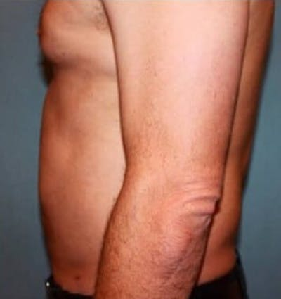 Liposuction Gallery - Patient 13947246 - Image 2