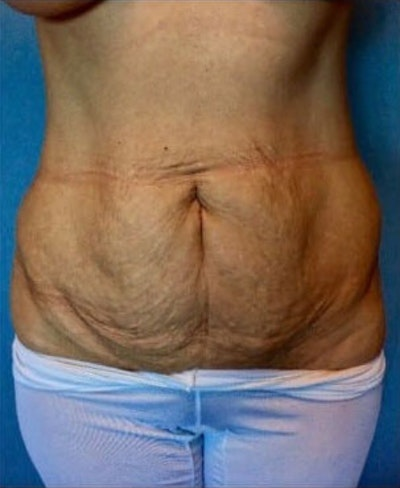 Tummy Tuck Gallery - Patient 10894674 - Image 1