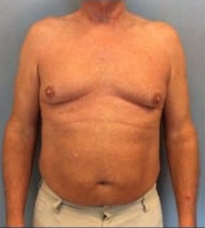 Liposuction Gallery - Patient 13947247 - Image 1