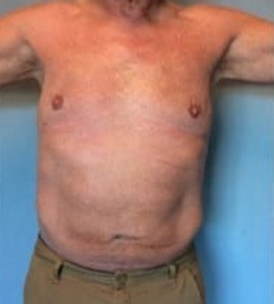 Liposuction Gallery - Patient 13947247 - Image 2