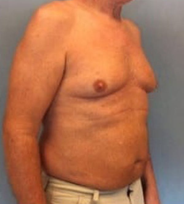 Liposuction Gallery - Patient 13947247 - Image 3