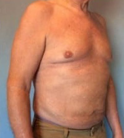 Liposuction Gallery - Patient 13947247 - Image 4