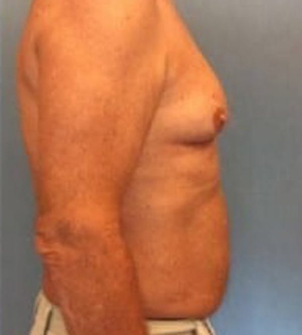 Liposuction Gallery - Patient 13947247 - Image 5