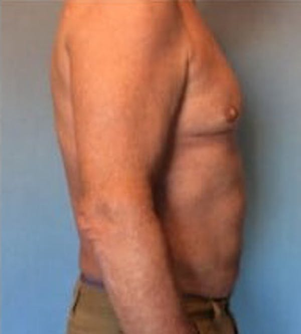 Liposuction Gallery - Patient 13947247 - Image 6