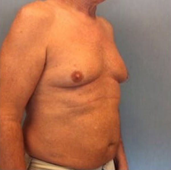 Liposuction Gallery - Patient 13947247 - Image 7