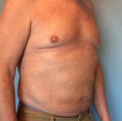 Liposuction Gallery - Patient 13947247 - Image 8
