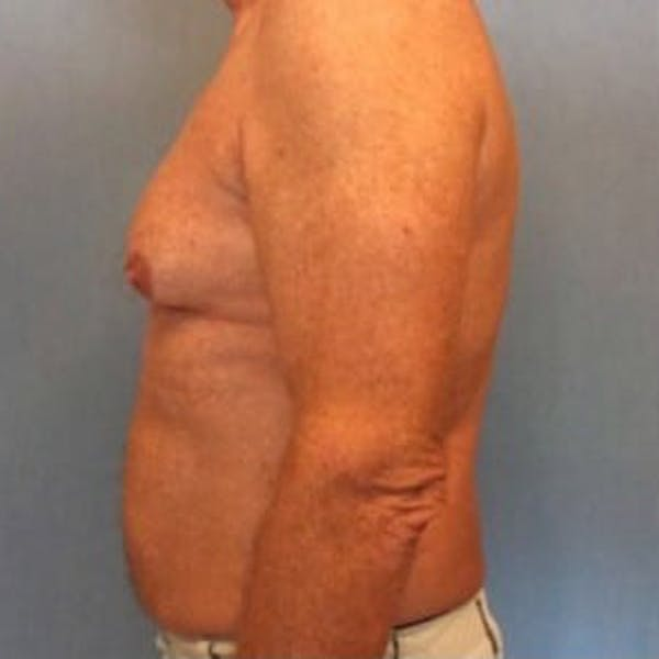 Liposuction Gallery - Patient 13947247 - Image 9