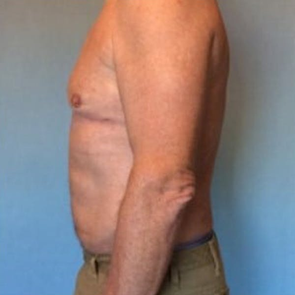 Liposuction Gallery - Patient 13947247 - Image 10